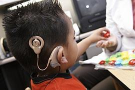 cochler implants