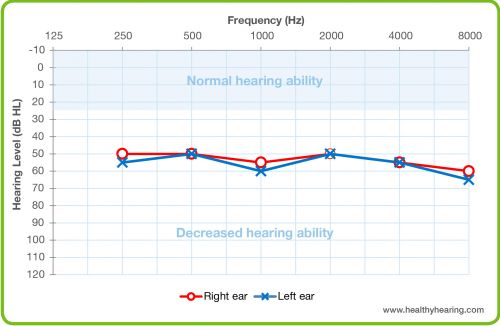 An audiogram is depicted, with normal hearing shaded at the top portion of the graph and results plotted for each ear.