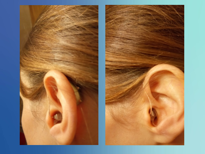 Cros Hearing Aids For Single Sided Deafness My