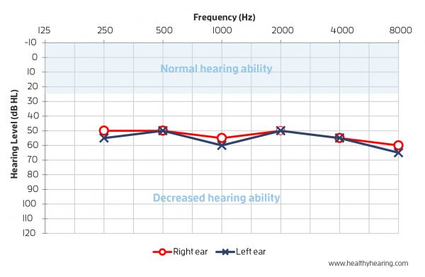 An audiogram is displayed with left and right ears plotted