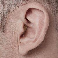 Prothèse auditive CIC