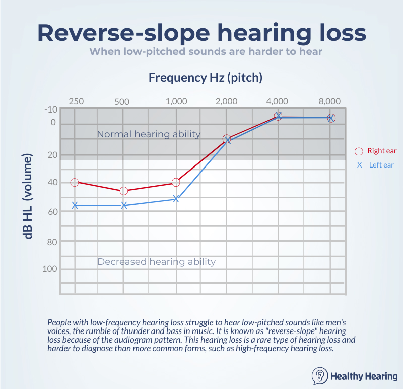 Audiogram of reverse-slope hearing loss