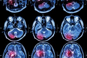 image showing multiple MRI scans of the brain