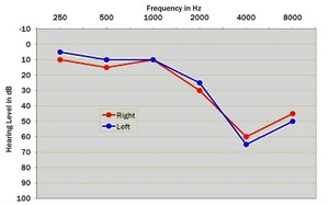 audiogram, hearing test, hearing test results, sound test, hearing loss