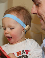 hearing impaired children and bone anchored hearing aids