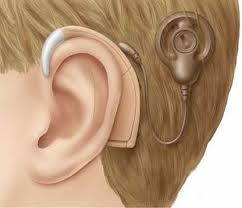 Cochlear implants are an option for those with profound or severe hearing loss