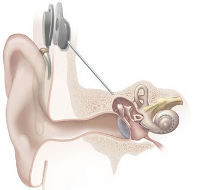 how a cochlear implant works