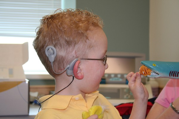toddler wearing a cochlear implant