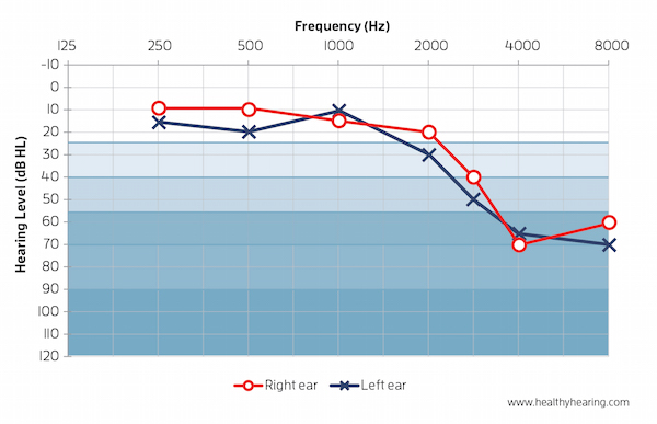 audiogram example