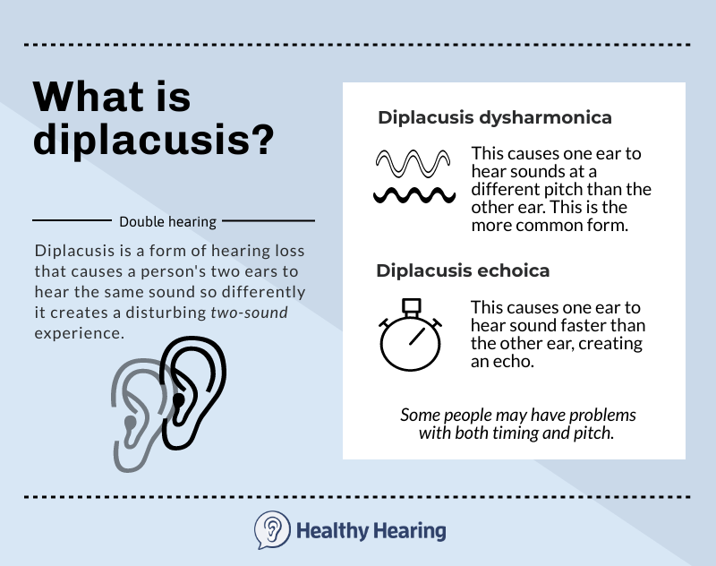 Infographic explaining diplacusis.