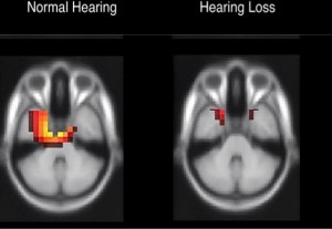 hearing loss and brain impact