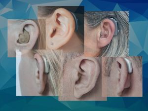 Different hearing aid examples