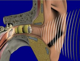 hearing loss, hearing aids, binaural hearing, technology