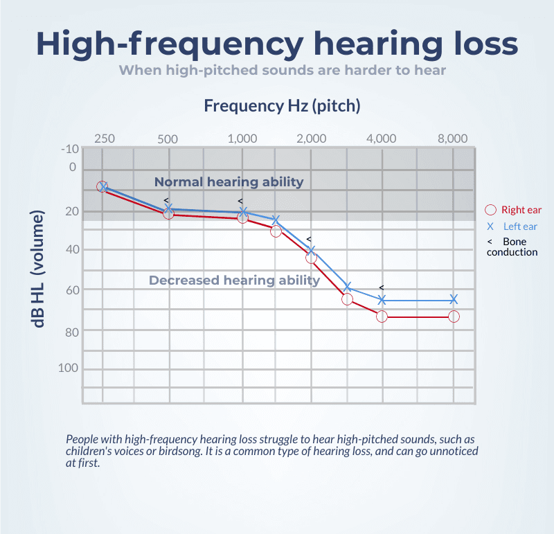 An audiogram showing high-frequency hearing loss.