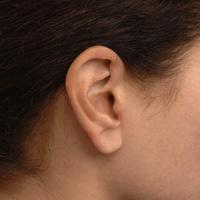 Lyric hearing aid being worn