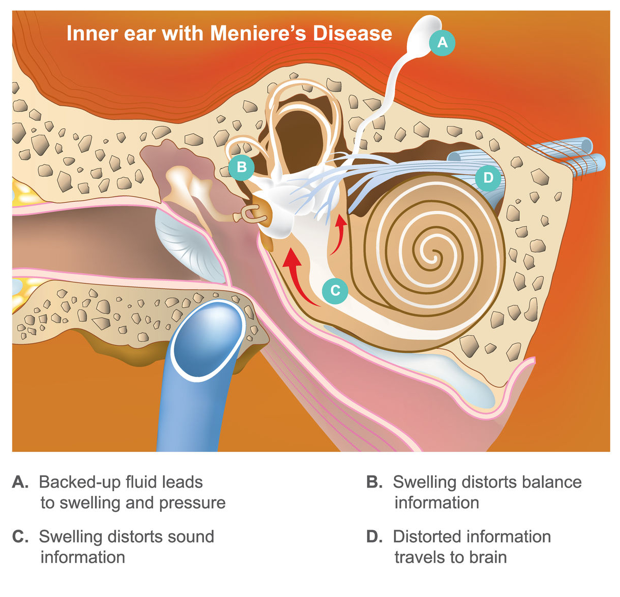 Meniere's disease - causes, symptoms, treatments