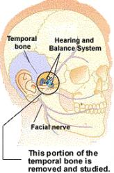 temporal bone location