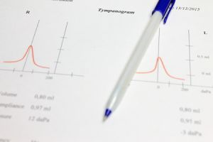 white paper graph with tympanogram curve