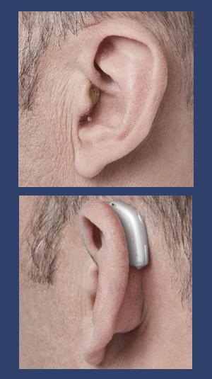 Images de prothèses auditives dans l'oreille et derrière l'oreille .