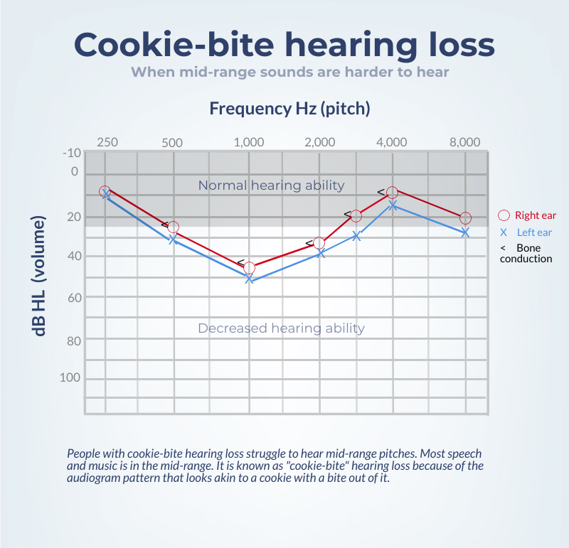 cookie-bite hearing loss: what is it?  healthy hearing